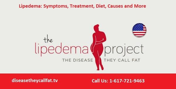 Treatment & Liposuction for Lipedema