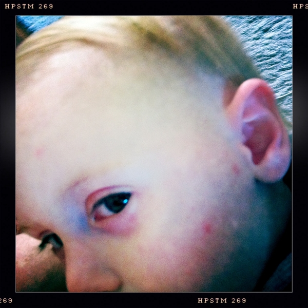 Fletcher of the day: chicken pox