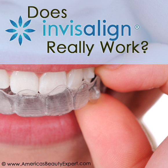 Could #Invisalign #braces be a #solution to your #crooked #teeth? Read this: http://bit.ly/19Zjhdp